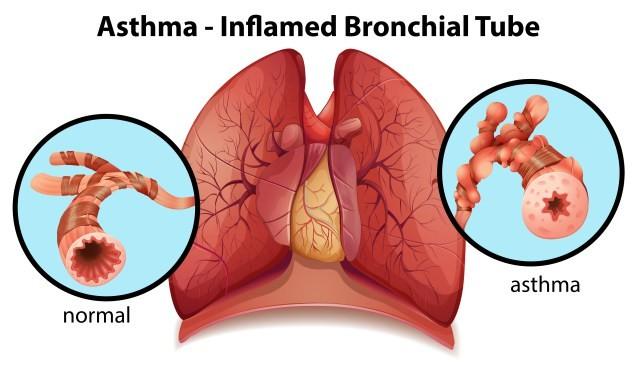 asthma-treatment